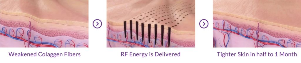 ICF Technology Result in Lift and Anti Aging